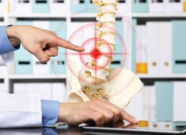 Spine Surgery Coding Made Simple