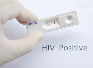Review HIV, ARC, and AIDS-related Encounters