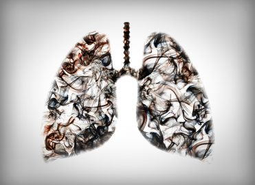 Medicare to Cover LDCT Lung Cancer Screening