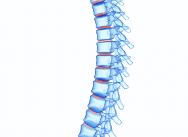 Solidify Your Vertebroplasty and Kyphoplasty Coding