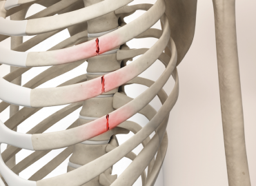 Reporting Rib Fracture Treatment in 2015