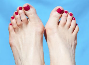 Routine Foot Care May Be Covered for Diabetics