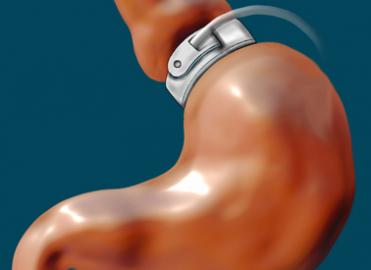 ICD-10:  Case Study