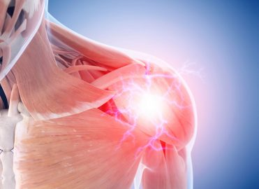 Hold Strong When Shoulder Arthroscopy Weighs You Down