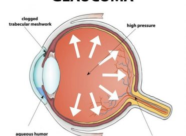 Get a Closer View of ICD-10-CM Glaucoma Coding