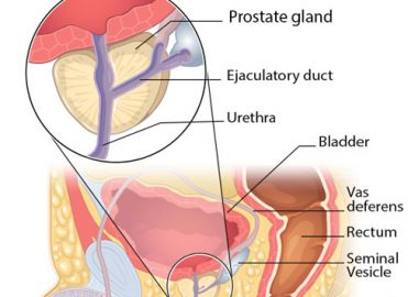 Prepare for an Uptick in Prostate Cancer Screening Claims