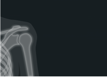 The New Year Brings Changes to Shoulder Arthroscopy in the NCCI Manual