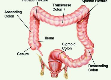 Screen for Correct Colorectal Polyp ICD-10 Coding