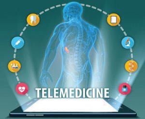 stroke telemedicine