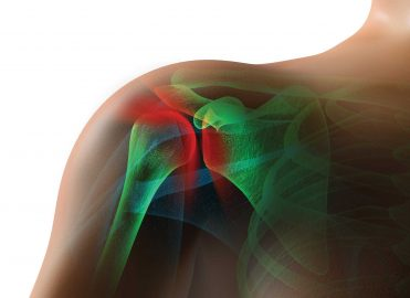 Stay Current when Reporting Shoulder Procedures
