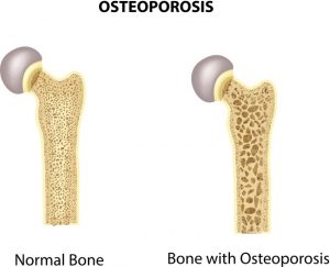 Osteoporosis ICD-10