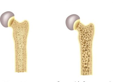 Osteoporosis ICD-10-CM Coding
