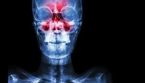 Hackers using X-ray machines