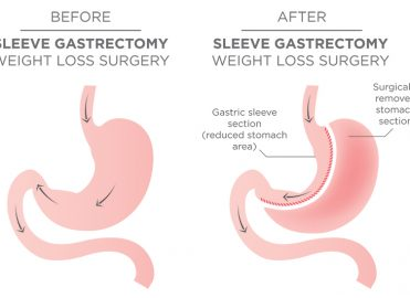 Bariatric Surgery: A Personal Perspective