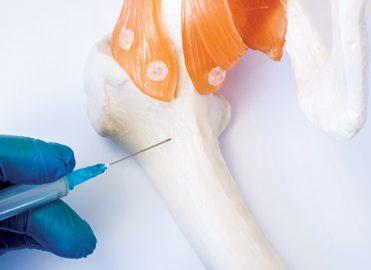 Bone Marrow Aspiration and Biopsy Coding