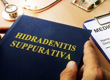 Hidradenitis Suppurativa: Diagnosis, Treatment, and Coding