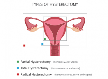 Correct Coding for Laparoscopically Assisted Vaginal Hysterectomy
