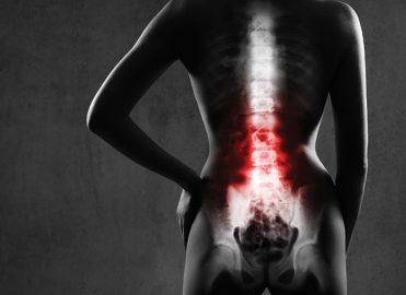 SPINAL Cord Stimulation Leads: A Coding Perspective