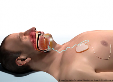 Innovative Obstructive Sleep Apnea Therapy Coverage Expands