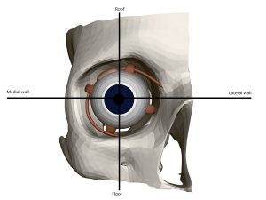 Part of a human skull with an eye. Internal structure of the eye. Front view. 3D. Vector illustration.