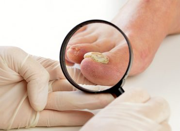 Molecular Testing for Nail Fungus Yields Improved Outcomes