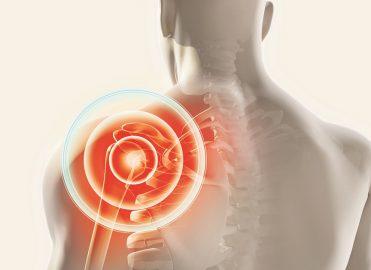 Update Your Understanding of Shoulder Arthroscopy Codes