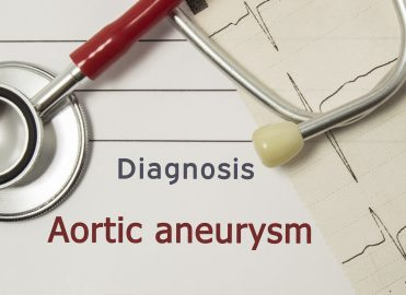 Recommendations for Abdominal Aortic Aneurysm Screening