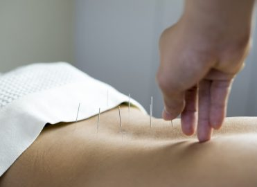 Acupuncture for Chronic Low Back Pain Covered Under Medicare