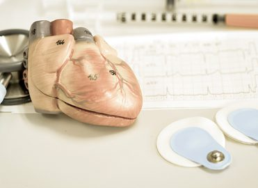 Stress Less Over Coding Cardiac Stress Tests