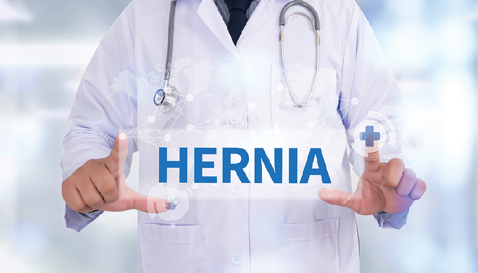 Hernia word and doctor